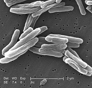 Health in China - Scanning electron micrograph of Mycobacterium tuberculosis