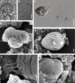Parasite180057-fig1 Chloromyxum atlantoraji SEM.png