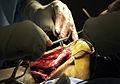 Ruptured achilles tendon.jpg