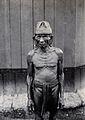 Sarawak; a Bakatan tribesman. Photograph. Wellcome V0037433.jpg