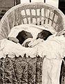 Siamese tweeling - Siamese twins (5679579879).jpg