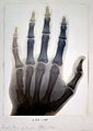 Sir Gervas Powell Glyn, 6th Bart.; radiograph of his hand. Wellcome L0022247.jpg