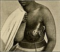 The breast- its anomalies, its diseases, and their treatment (1917) (14757015355).jpg
