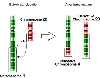 Chromosomal translocation - Chromosomal reciprocal translocation of the 4th and 20th chromosome.