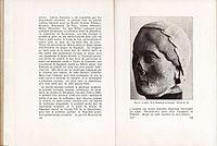 """""""Lille"""" par le Lieutenant Feulner - Page 178 et 179.jpg"""