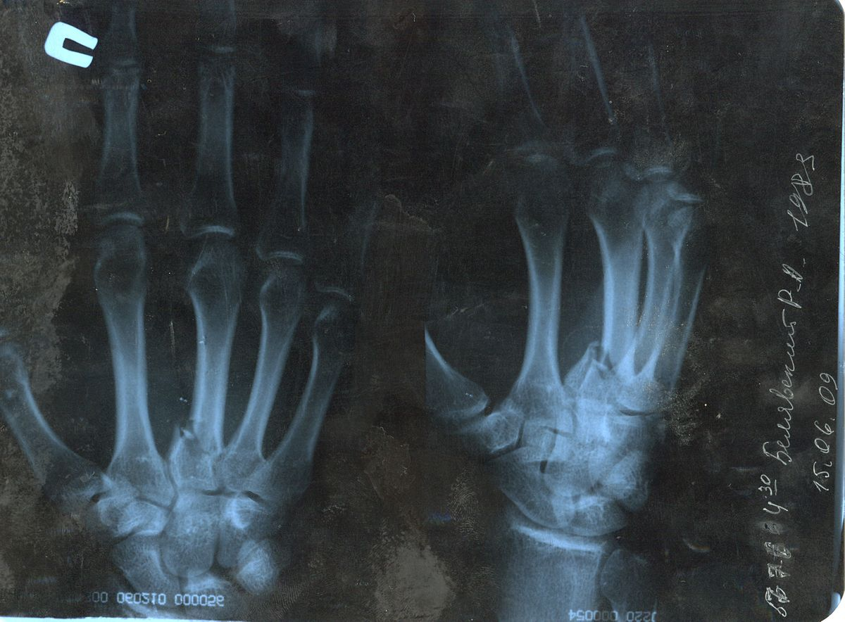 Перелом пальцев кисти — Википедия