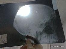 Рентген черепа.jpg