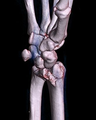 Barton's fracture - A palmar Barton's fracture of the right wrist, as shown on a 3D-rendered CT scan