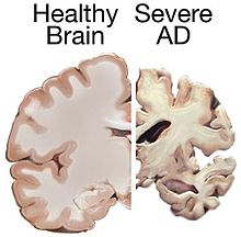 Comparison of the brain of a healthy human and of an Alzheimer's patient.
