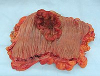 Colectomy specimen containing an invasive colorectal carcinoma (the crater-like, reddish, irregularly-shaped tumor).