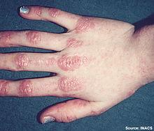 amyopathic dermatomyositis #11