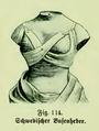 Die Frau als Hausärztin (1911) 114 Schwedischer Busenheber.png