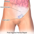Inguinal Hernia Patch.png