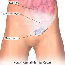 Male sex after hurnia operation
