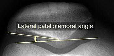 Lateral patellofemoral angle.jpg