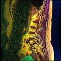 Lumbosacral MRI case 05 03.jpg