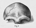 Neandertal 1 Calvarium B fig.3.jpg