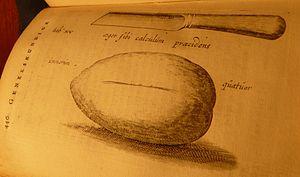 Jan de Doot -  Illustration of the knife and bladder stone (publication 1740)
