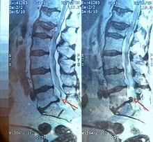 La disfunción eréctil puede ser causada por estenosis espinal