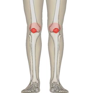 Patellofemoral pain syndrome Human disease
