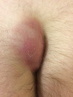Pilonidal disease Hair-containing cyst or sinus, occurring chiefly in the coccygeal region