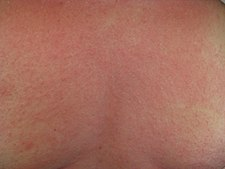 Rash on the chest of a person with anaphylaxis.jpg