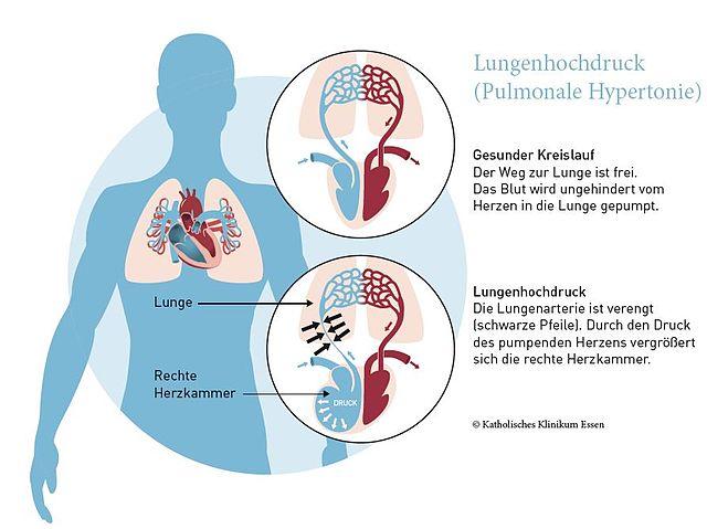 Schaubild Lungenhochdruck Katholisches Klinikum Essen