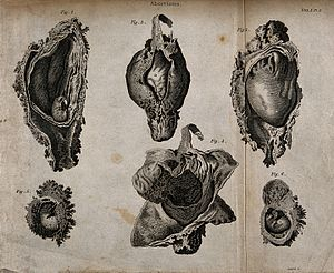 Six diagrams of abortions at different stages. Engraving by Wellcome V0014952.jpg
