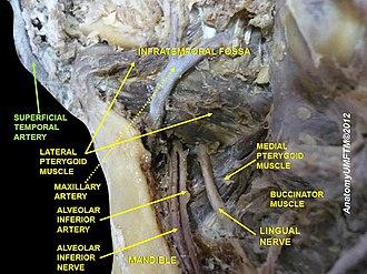 Superficial temporal artery - Image: Slide 5dddd