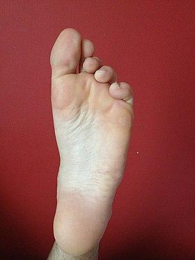 dolor extremo en la parte inferior de la pierna y el pie