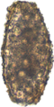 A. lumbricoides infertile egg.png