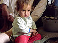 A 3-year-old boy rests on his father's bandaged leg during a meeting with International Security Assistance Force service members Nov. 15, 2011, in Kandahar province, Afghanistan 111125-A-BE343-003.jpg