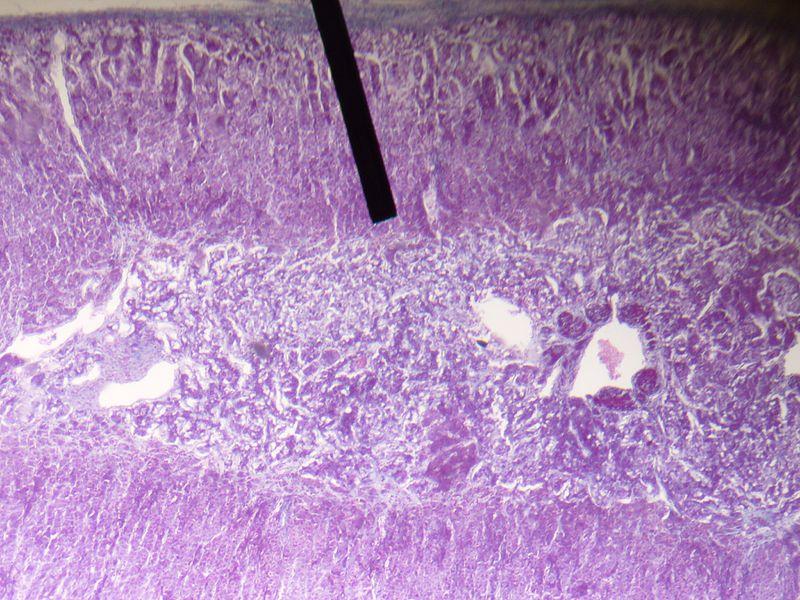 zona reticularis - howlingpixel, Human Body