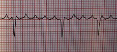 Atrial flutter - Wikipedia, the free encyclopedia