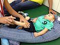 Bebê com microcefalia 01.jpg