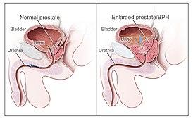 Как проявляется повышенный уровень тестостерона у женщины