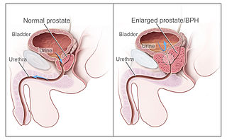 Benign prostatic hyperplasia noncancerous increase in size of the prostate