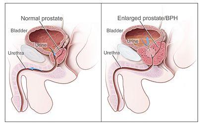 Benign Prostatic Hyperplasia nci-vol-7137-300.jpg