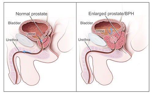 Cialis to treat enlarged prostate