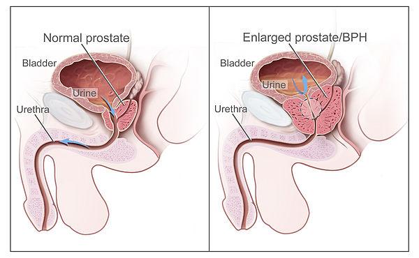 600px-Benign_Prostatic_Hyperplasia_nci-vol-7137-300.jpg