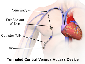 Port (medical) - Central Venous Access Device (Tunneled).