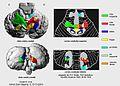 Cerebellum somatotopie - PT.jpg