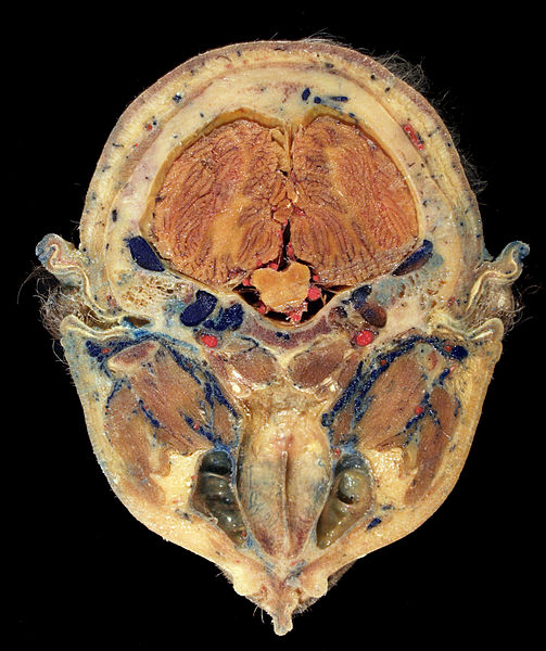 File:Head Plastination - Transverse Section.jpg