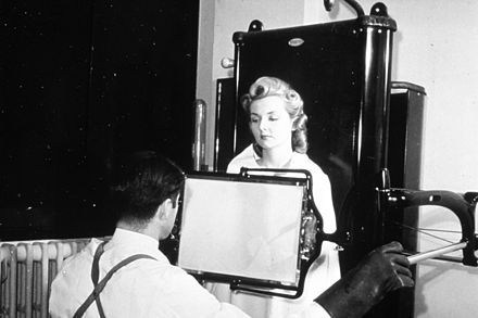 A patient being examined with a thoracic fluoroscope in 1940, which displayed continuous moving images. This image was used to argue that radiation exposure during the X-ray procedure would be negligible. Historical X-ray nci-vol-1893-300.jpg
