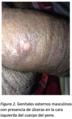 Kleibsiella Granulomatis 2.png