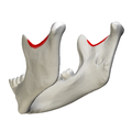 Mandibular notch - close-up - lateral view3.png