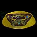 Pelvic MRI 06 24.jpg