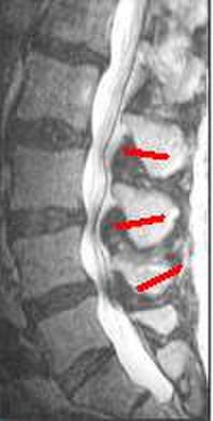 Laminotomy - MRI of the lumbar spine showing spinal stenosis