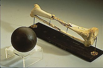 Daniel Sickles - Sickles's leg, along with a cannonball similar to the one that shattered it, on display at the National Museum of Health and Medicine