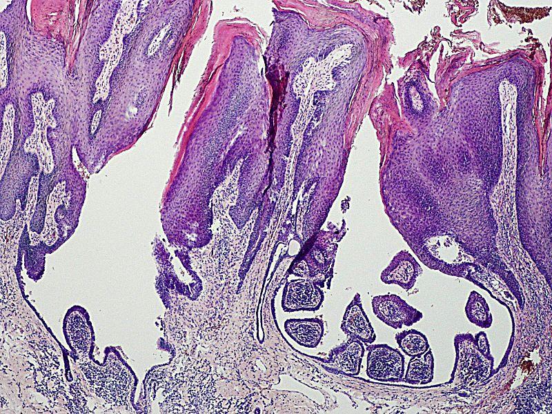 Pathology Outlines - Syringocystadenoma papilliferum